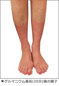 ゲルマニウム温浴(20分)後の脚の様子